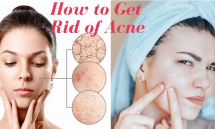 11 Natural Ways to Get Rid of Acne Fast